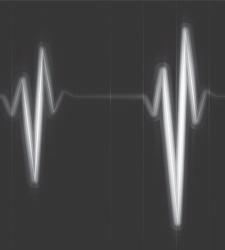 Das Anschlagen der durch den Herzschlag